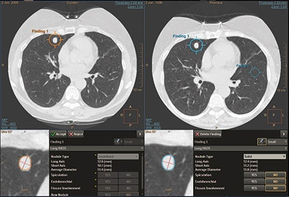 ct-lung-nodule-assessment