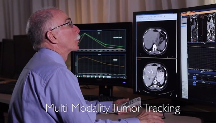 Évaluation du traitement grâce à la quantification : application Multi Modality Tumor Tracking sur IntelliSpace Portal
