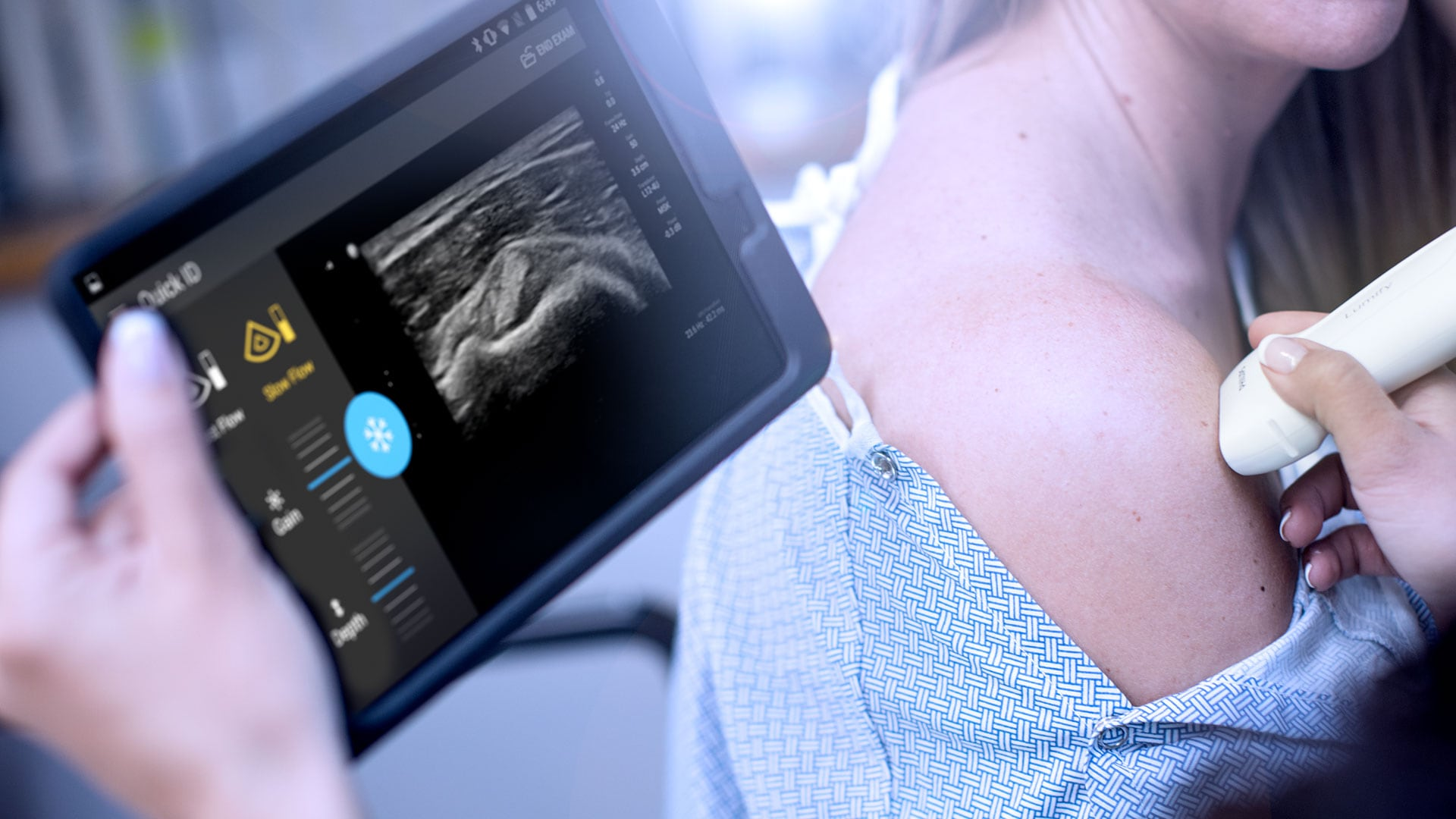 ultra-portable ultrasound scanners